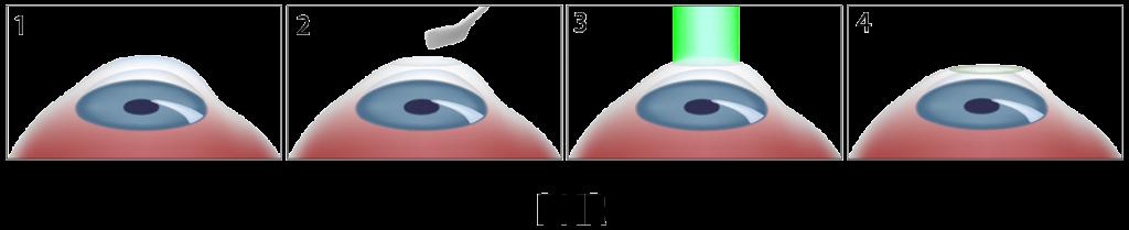 techniques-PKR